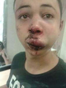 15-year old Tariq, cousin of recently murdered Muhammad Abu Khdeir (16), was beaten and abducted by Israeli police on Thursday. He was refused medical treatment for his broken nose and other injuries while in custody. Read the full article here: http://www.imemc.org/article/68330